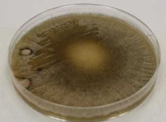 The stuff growing in this dish could be in your pillow