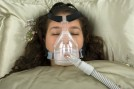 Sleep-Apnea-1606459